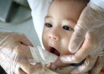 Cuidados Com a Boquinha do Bebê Logo Após o Nascimento